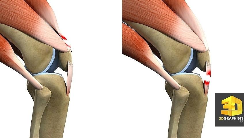 illustration 3d medicale dechirure muscles genoux