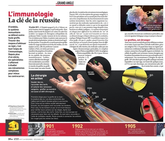 Infographie 3D médicale - greffe de main