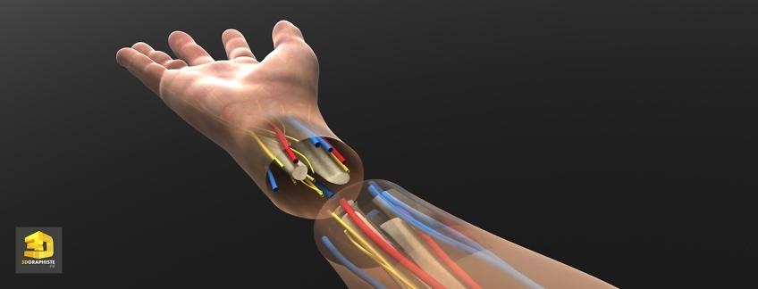 Greffe de la main - Illustration 3D médicale