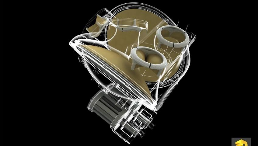 Illustration médicale - Cœur artificiel